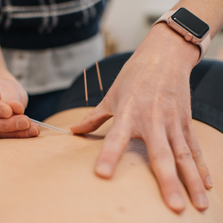 Acupuncture in Chelmsford
